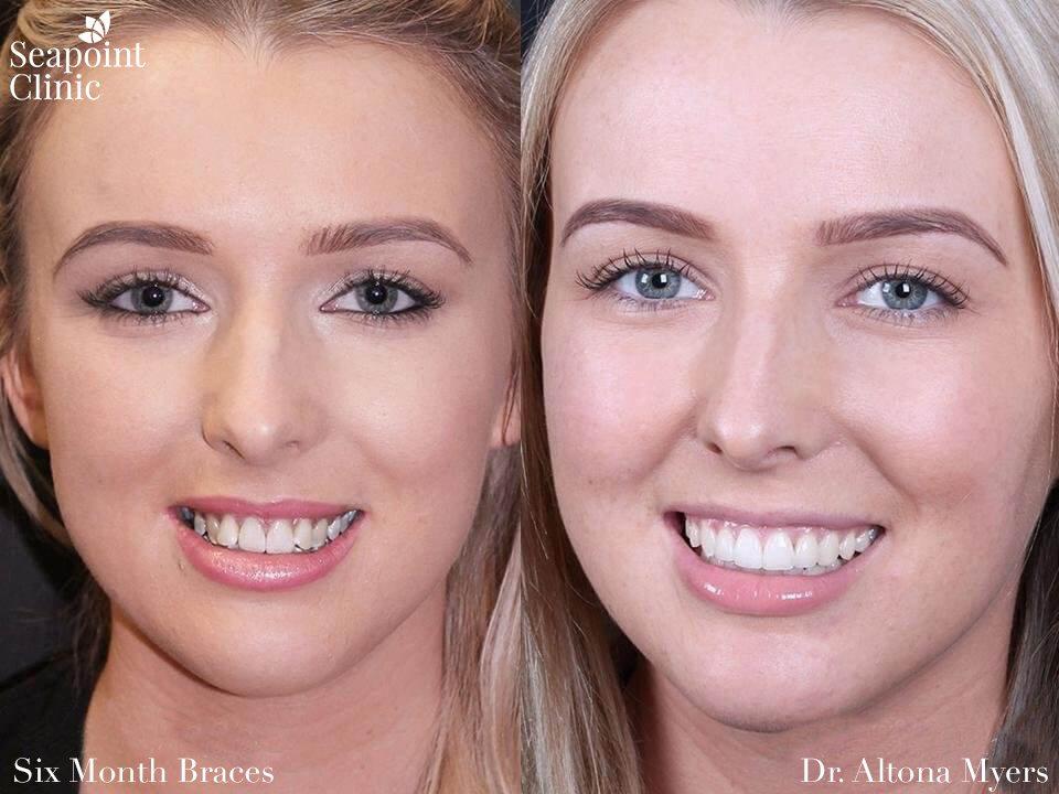 Six Month Braces | Teeth Braces | Dentistry Braces
