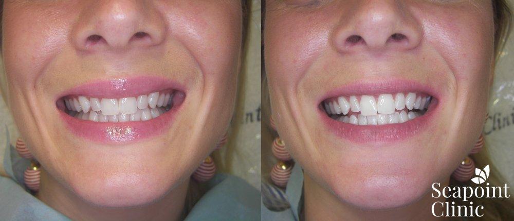 Teeth Whitening | Bleach Teeth | Teeth Whitening Dublin