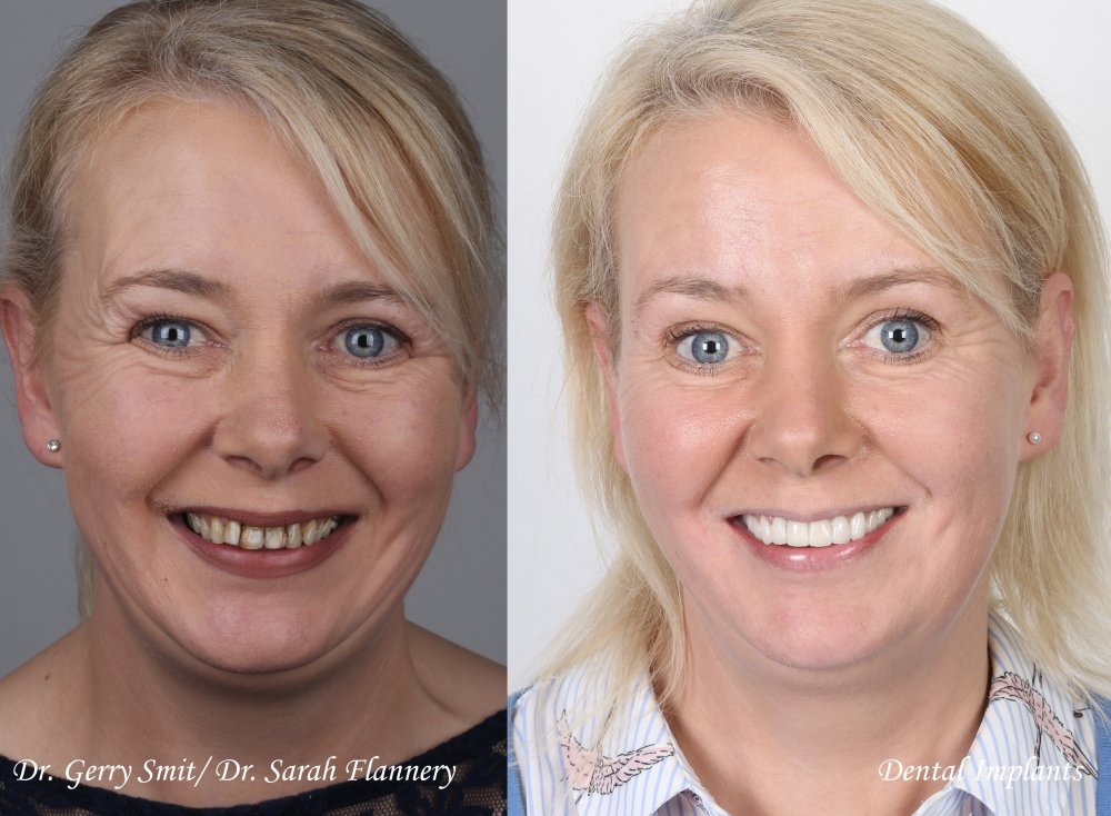 caroline duffy dental implants veneers