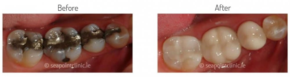 White fillings dental fillings composite fillings white fillings solutioingenieria